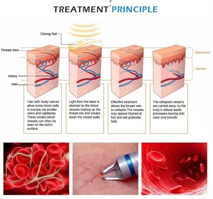 veins removal machine